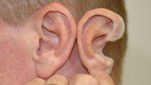 3D-Printing-Ear