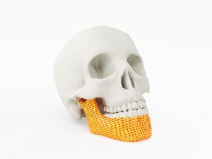 3D-printing-medical-devices